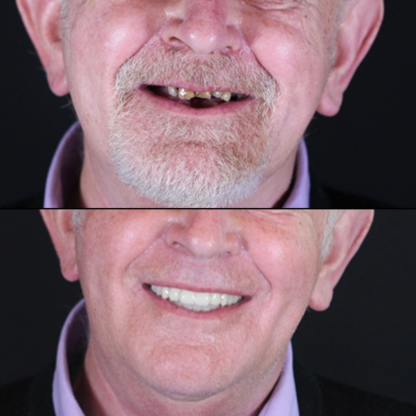 before and after full arch dental implants